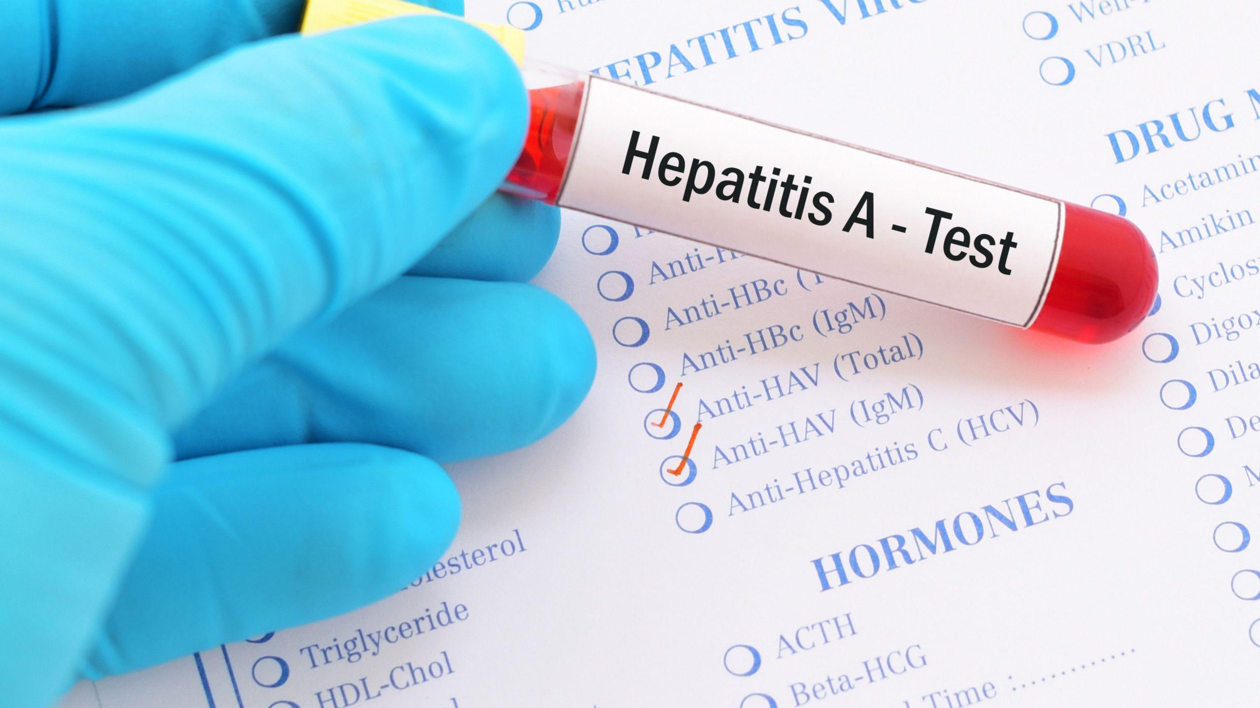 Wabah Hepatitis A di Pacitan Berstatus Kejadian Luar Biasa, ini Saran Kemenkes