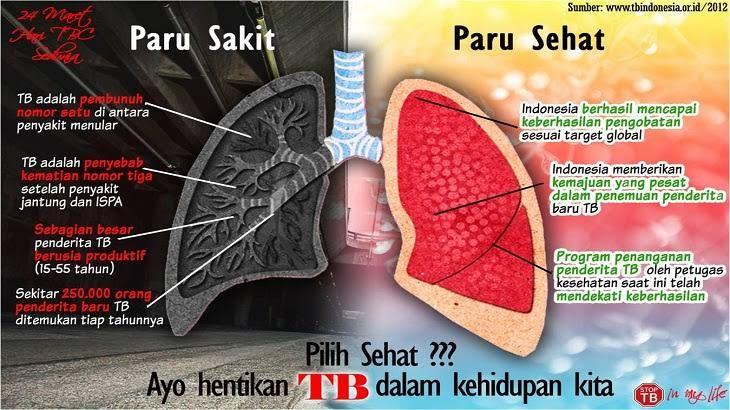 Kemenkes Minta Masyarakat Waspadai TBC